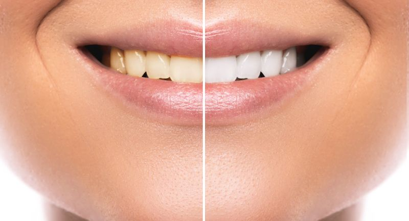 Blanqueamiento Dental en clínica (Madrid)